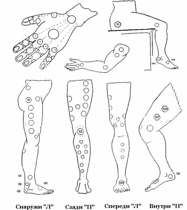Геморрой лечение по сунне