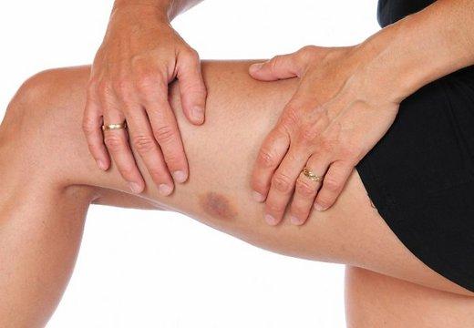 появление синяков на ноге