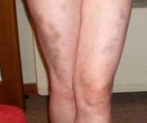 синяки ноги