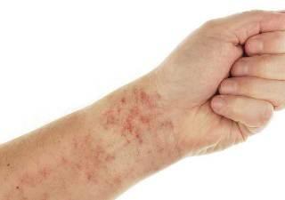 сыпь на руке