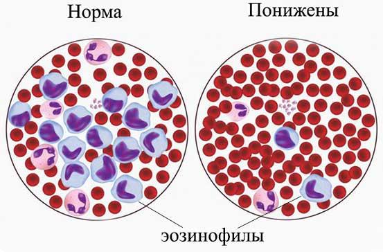 снижение эозинофилов