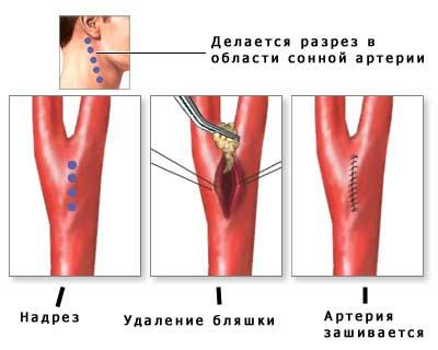 Что такое стеноз артерий