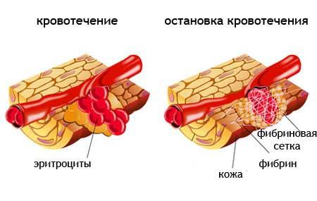 сосуд при кровотечении