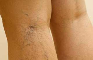 вздутые капилляры на ногах