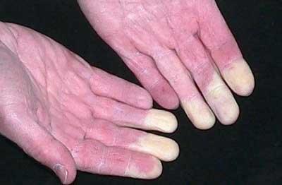 спазмы капиряров на руках