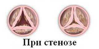 стеноз сердечного клапана