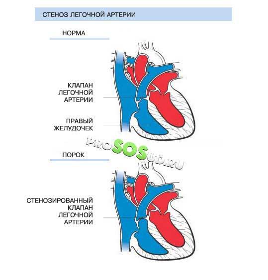 стеноз лёгочной артерии
