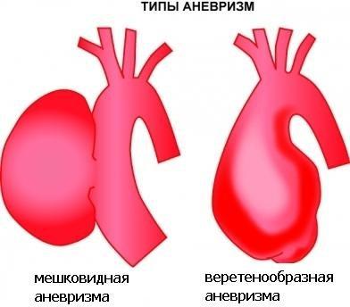 мешковидная и веретенообразная аневризма