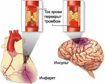 ток крови в мозге