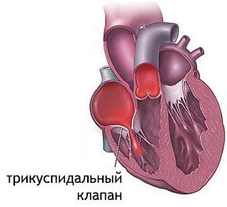 как выглядит клапан сердца