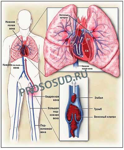 тромб в лёгких