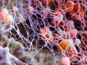 Хроническое миелопролиферативное заболевание jak2 позитивное