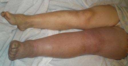 тромбоз ног