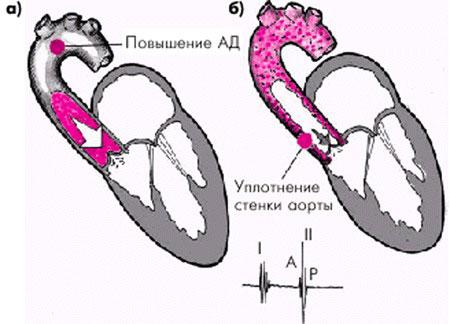 уплотнение стенки аорты