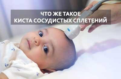 УЗИ новорожденного