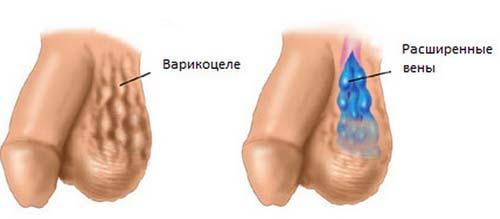 Проба вальсальвы при варикозе