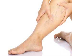 варикоз на ноге