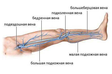 Кроссэктомия большой подкожной вены бедра