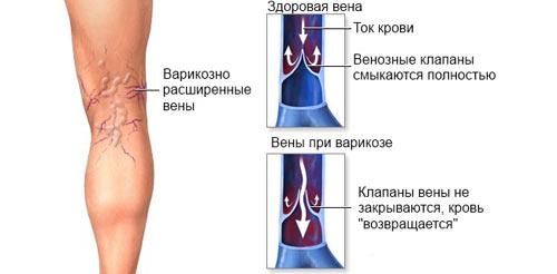 вены при варикозе