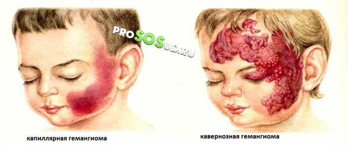 Удаление гемангиомы у детей