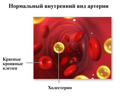 внутренний вид артерии