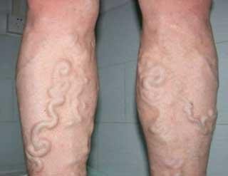 вздутые вены на ногах