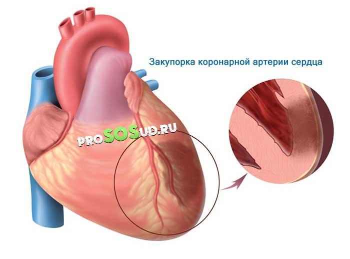 Закупорка коронарной артерии сердца
